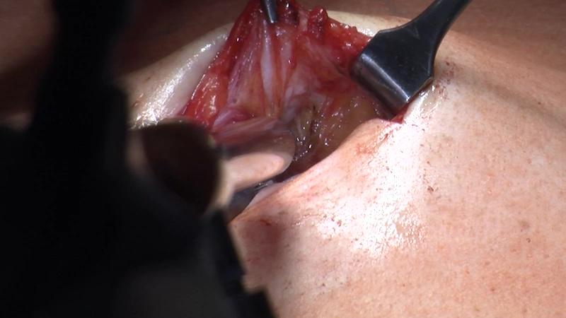 OP-Beschreibung - MILOS-Hernia-Repair